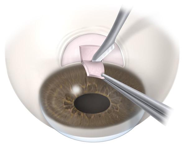 Trabeculectomy  | Wyse Eyecare
