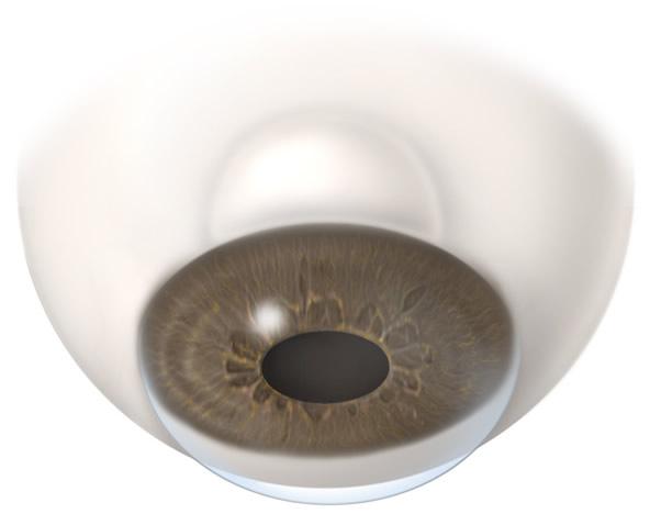 Trabeculectomy | Wyse Eyecare | Northbrook