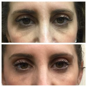 BOTOX Procedure Before and after images Northbrook