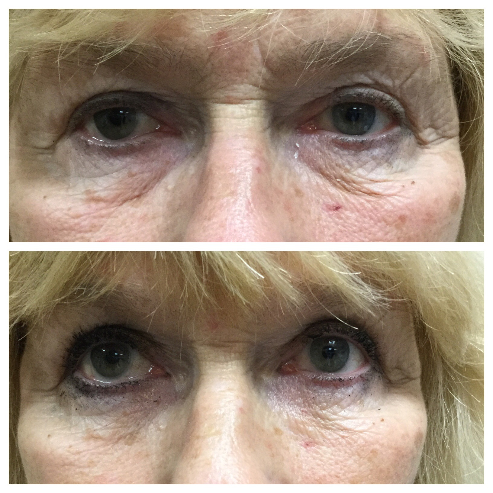 Botox 174 And Filler Pictures Wyse Eyecare