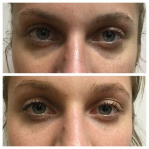 BOTOX Before and after Northbrook