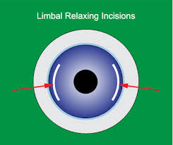 A medical concept image of Limbal Relaxing Incisions made on an eyeball. style=