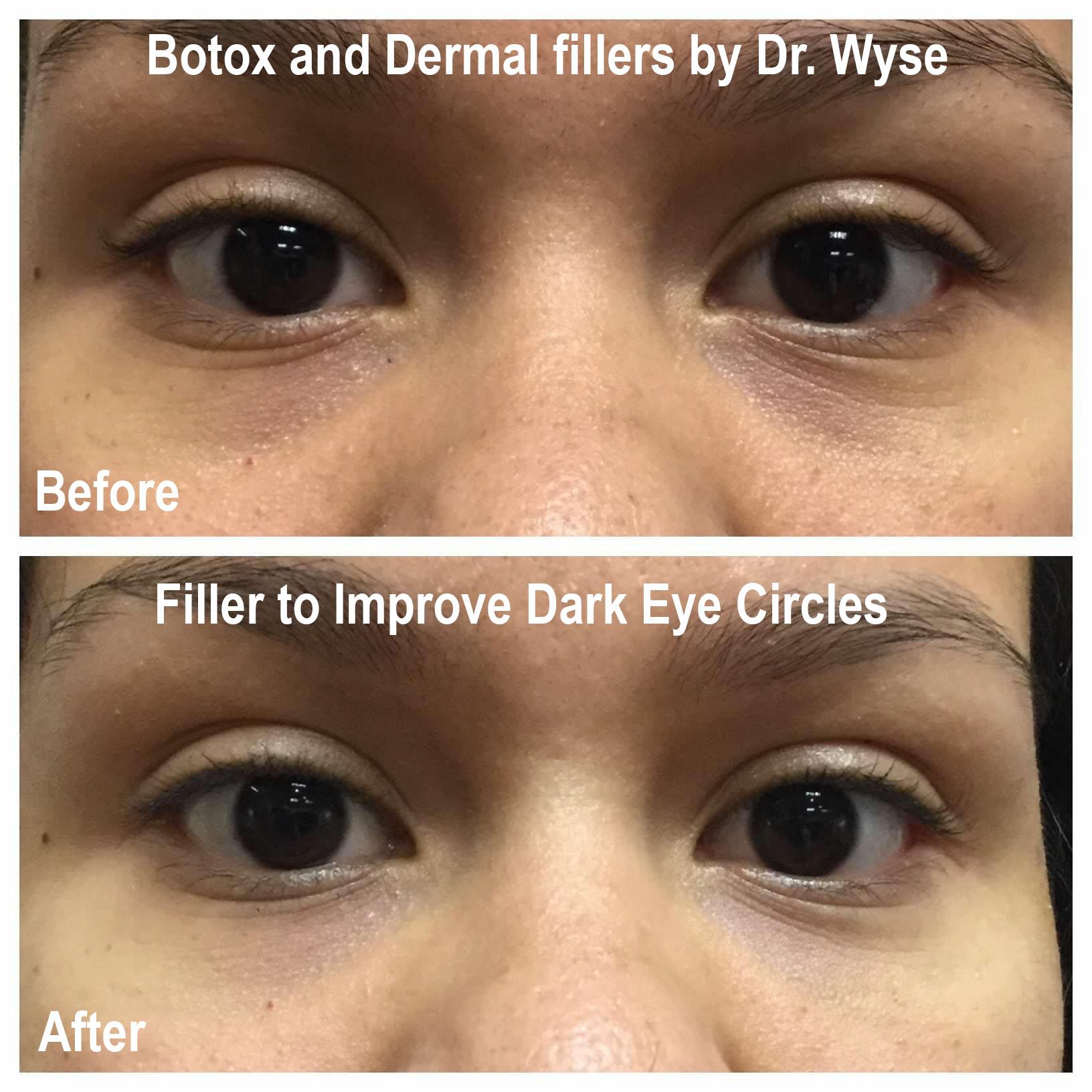 Filler to Improve Dark Eye Circles