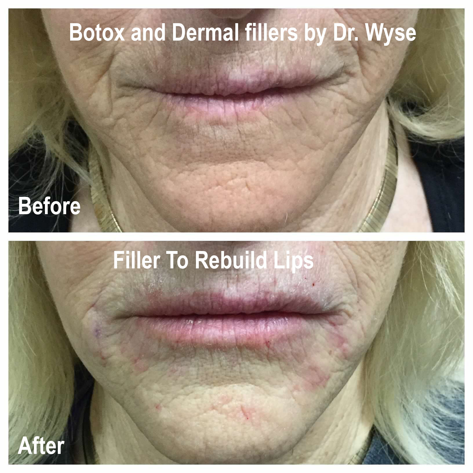 Fillers to rebuild lips