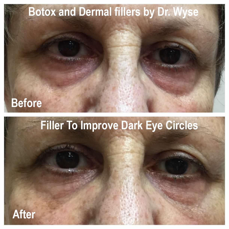 Fillers to Improve Dark Eye Circles