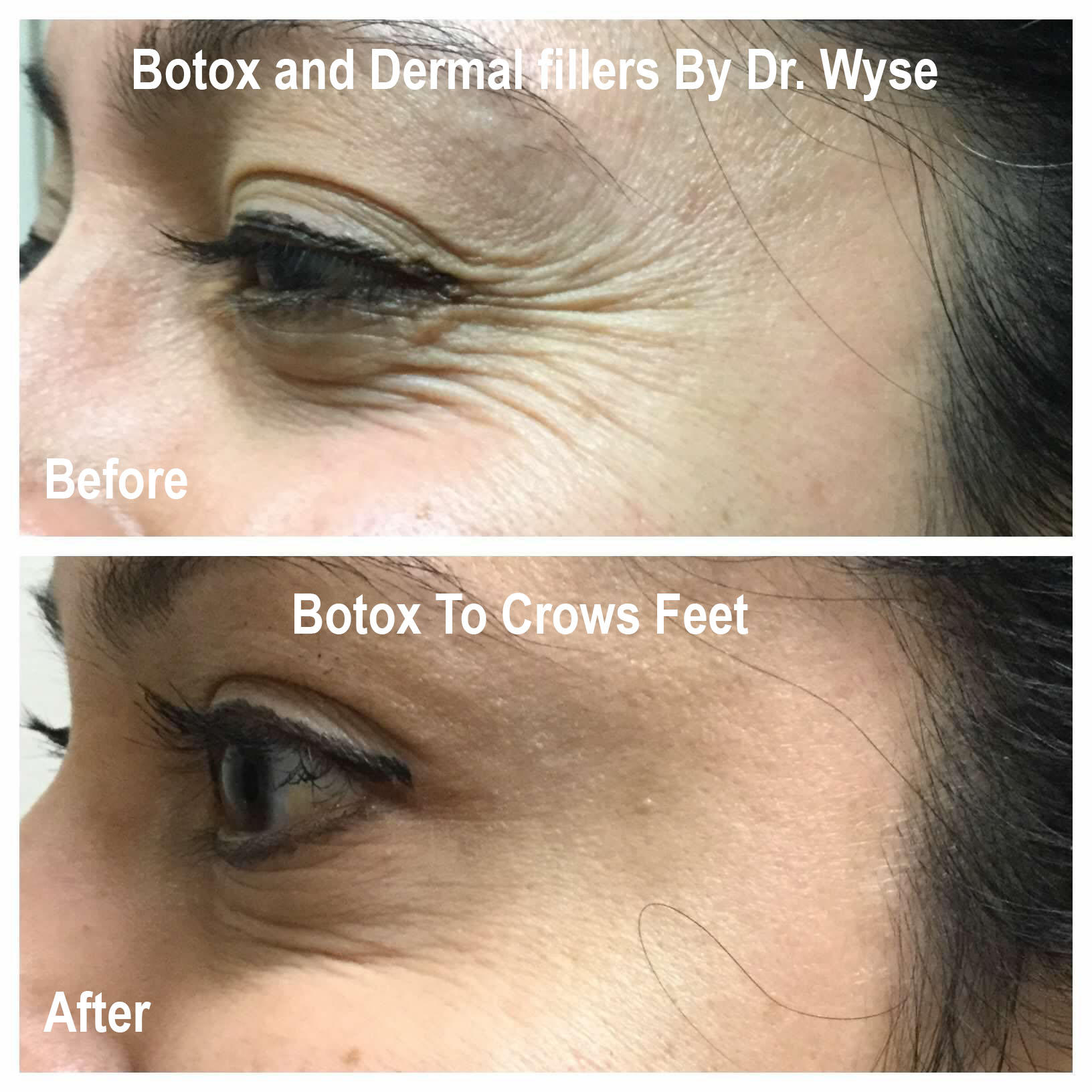 Crows Feet for BOTOX