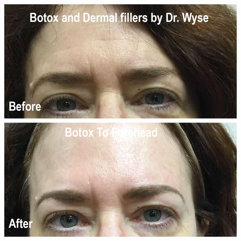 Dr. Wuse BOTOX Forehead Procedure