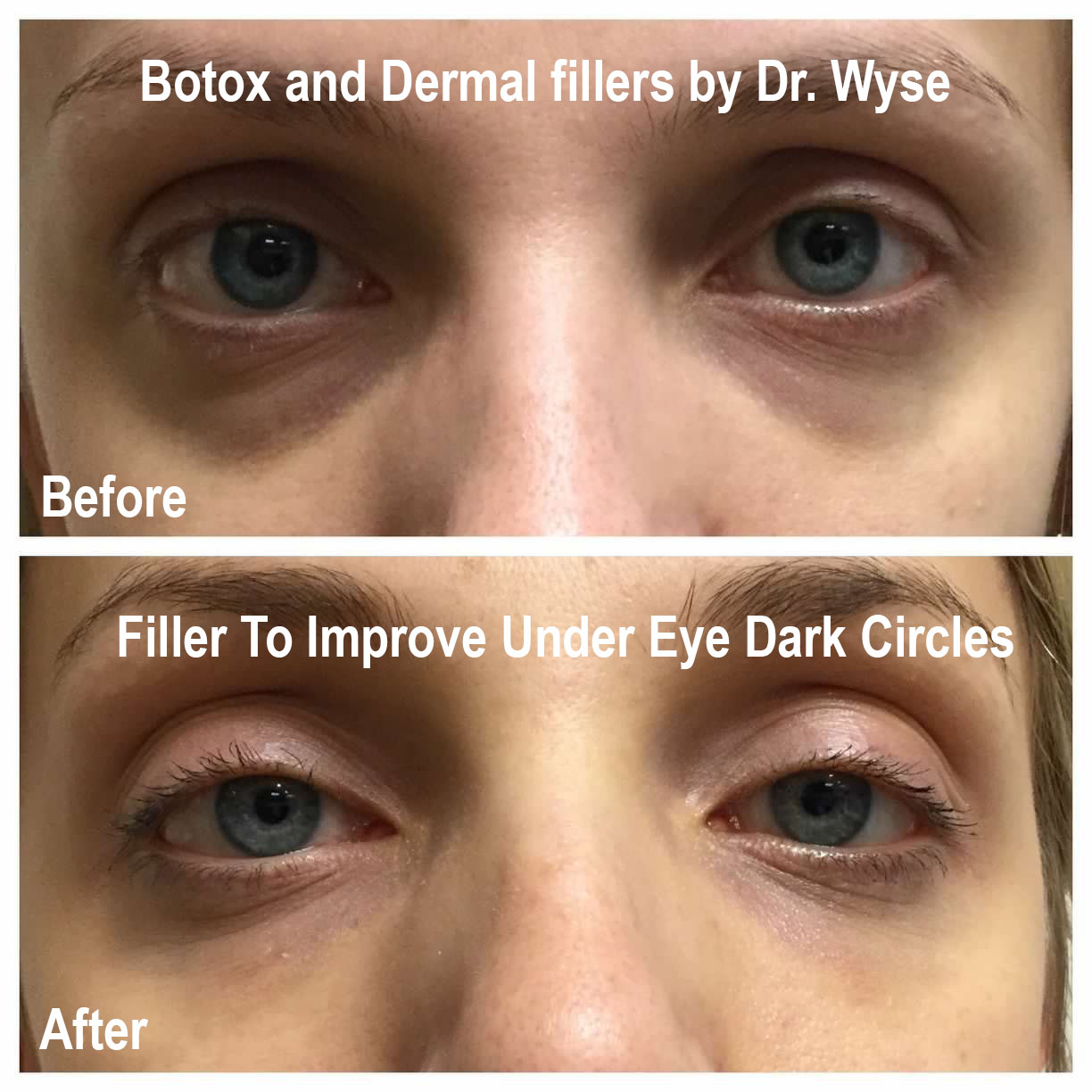 Dr. Wyse BOTOX and Dermal Fillers