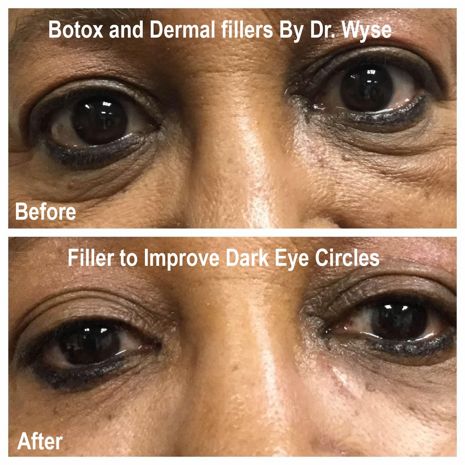 Dark Eye Circles - BOTOX and Dermal Fillers