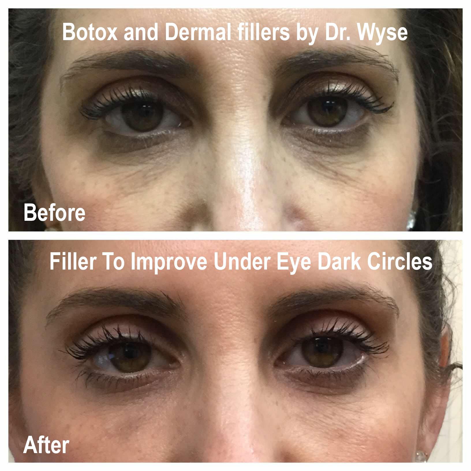 Fillers to Improve Under Eye Dark Circles