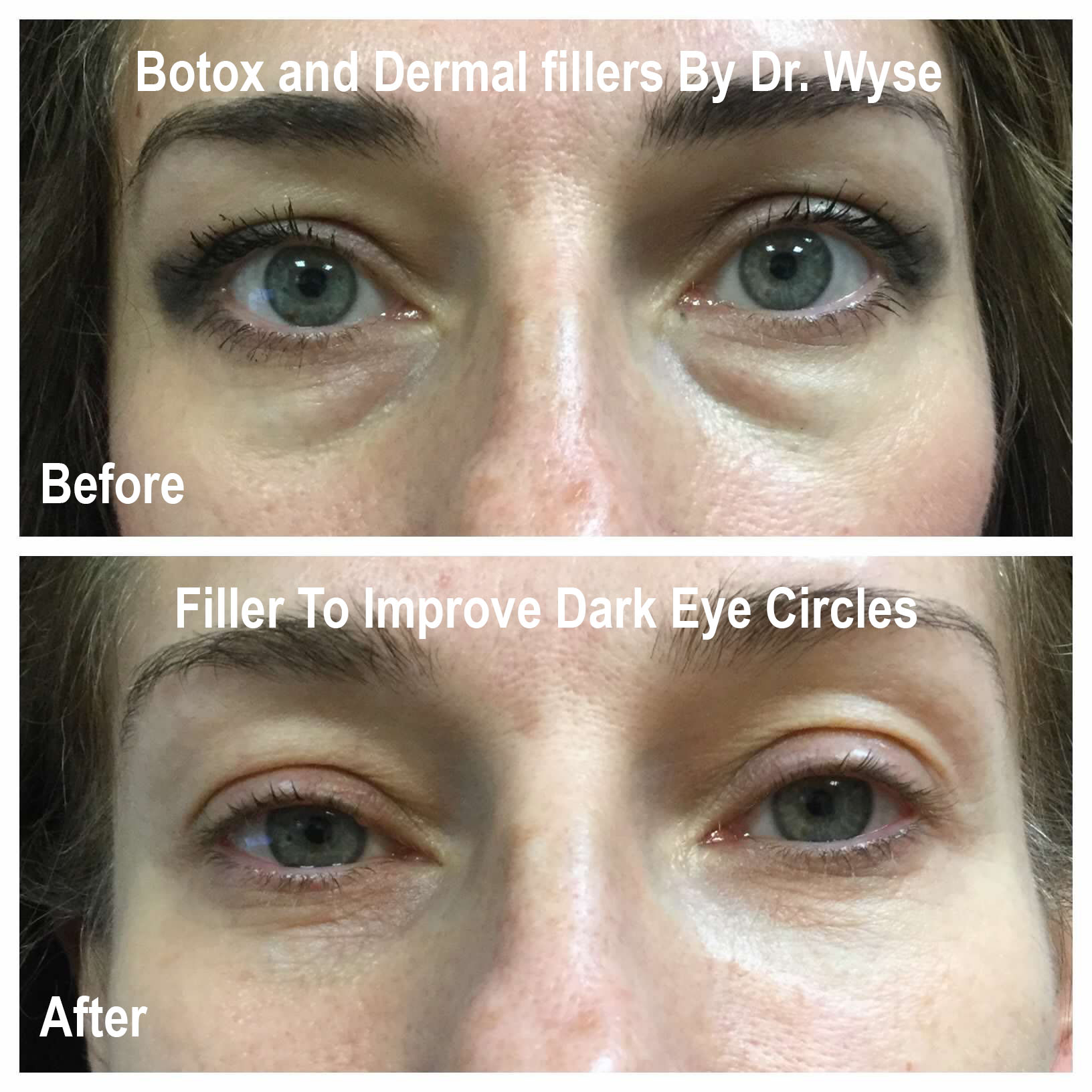 Before and After for Dermal Fillers
