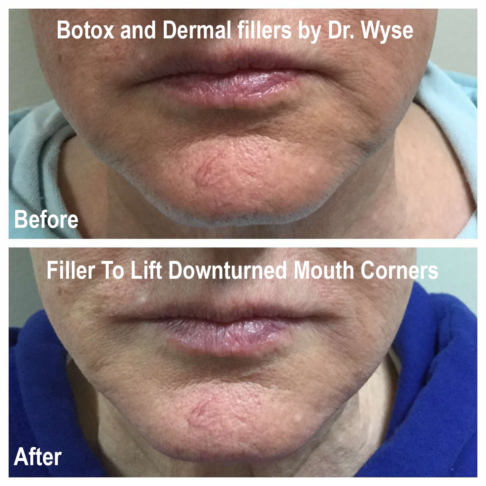 Dermal Fillers for Mouth Corners
