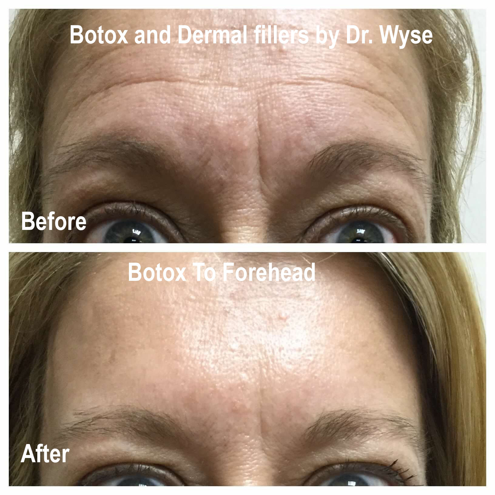 Before and After for BOTOX