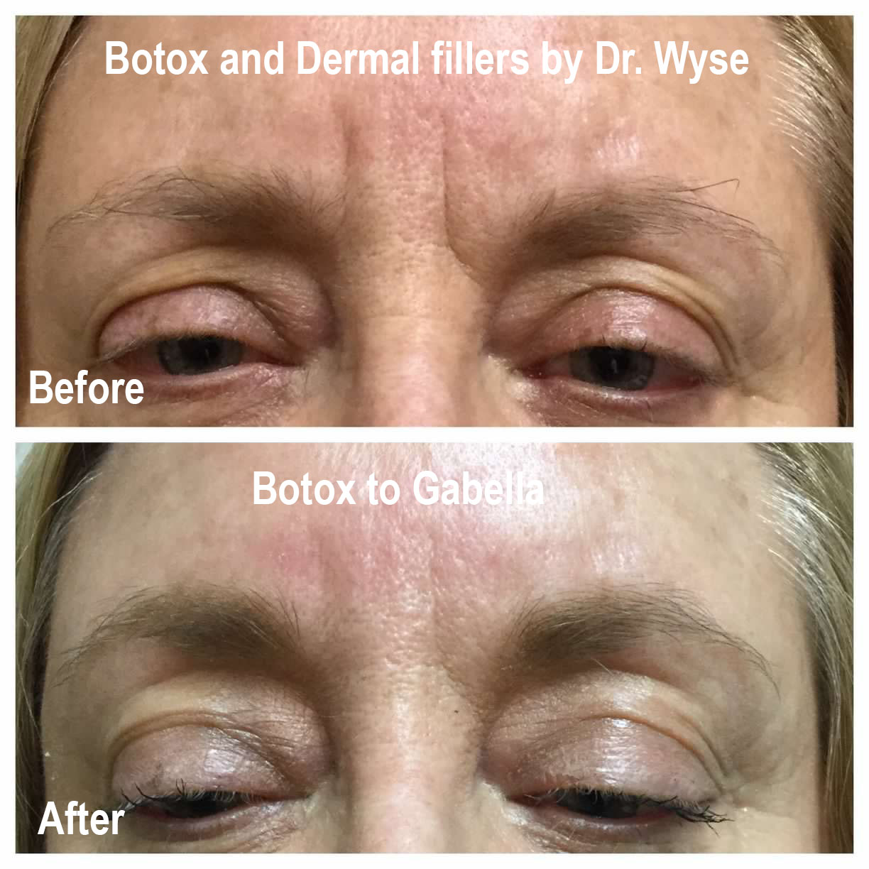 Dr, Wyse Before and After