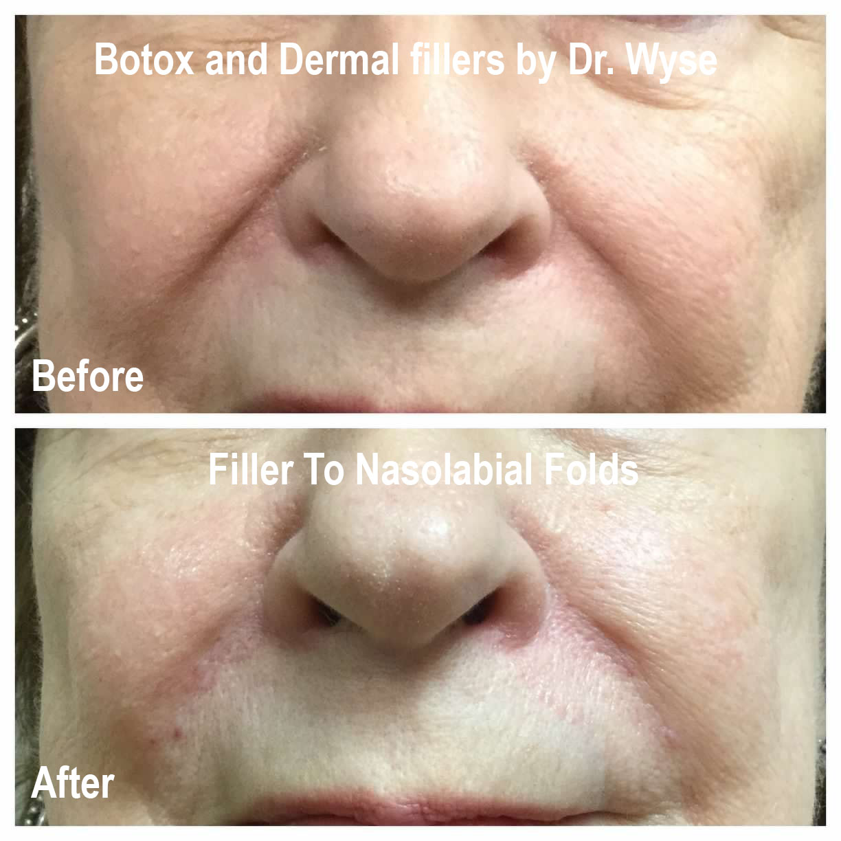 Before and after Nasolabial Folds