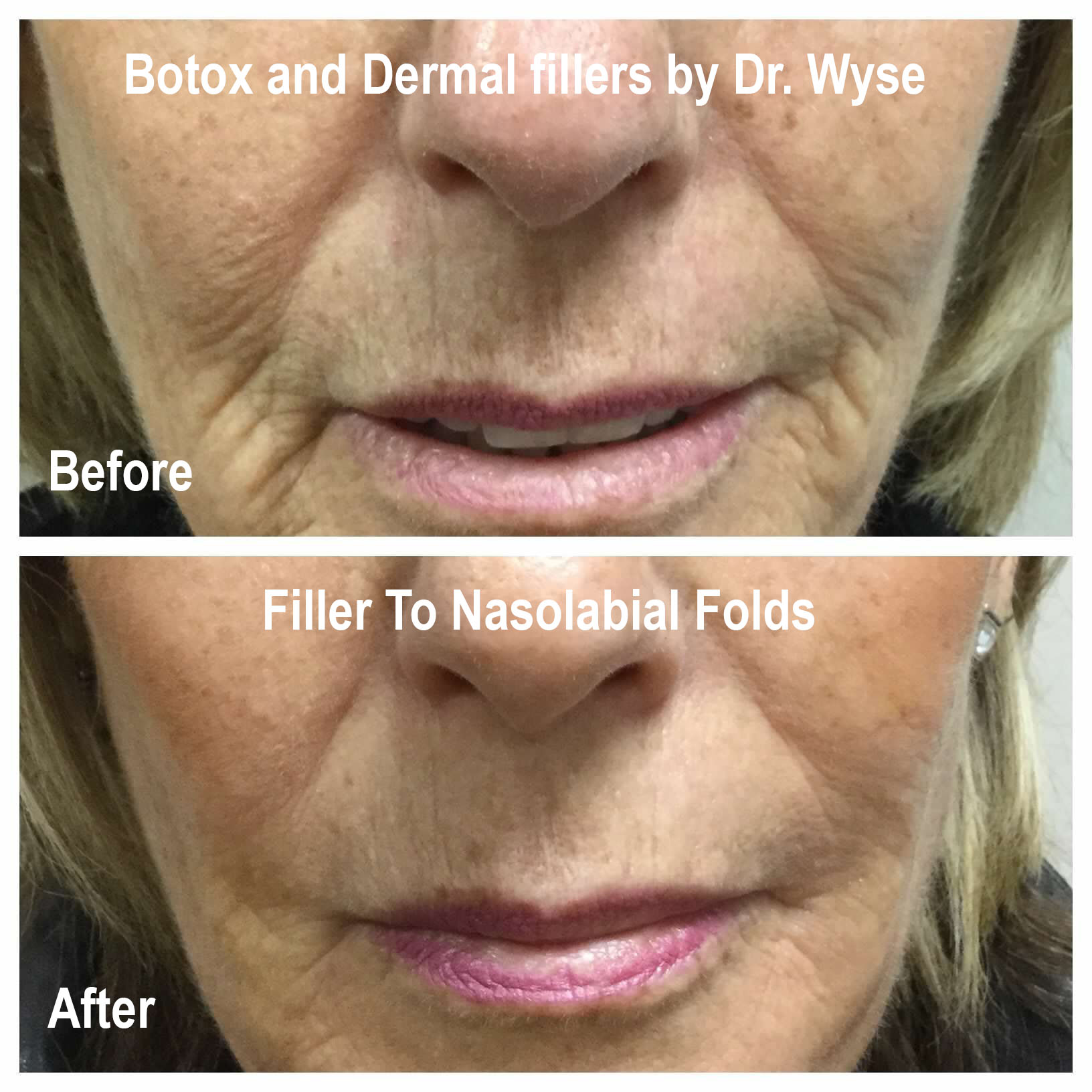 BOTOX and Dermal Fillers by Dr. Wyse