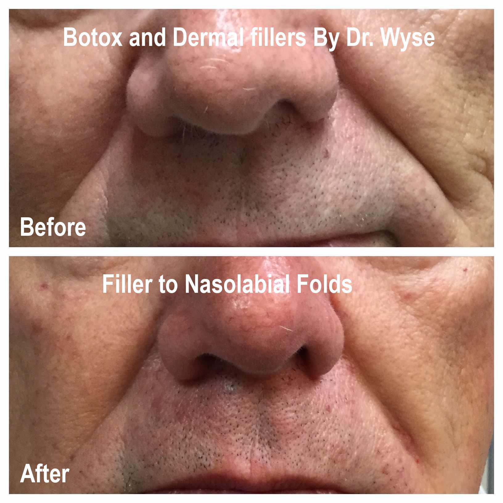 BOTOX and Dermal Filler images